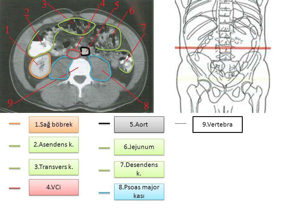 1.Sağ böbrek 2.Asendens k. 3.Transvers k. 4.VCi 5.Aort 6.Jejunum 7.Desendens k. 8.Psoas major kası 9.Vertebra