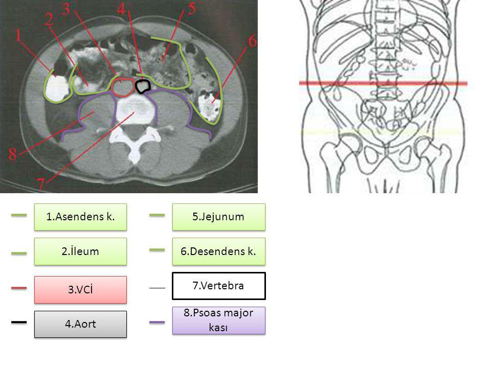 2.İleum 1.Asendens k. 3.VCİ 4.Aort 5.Jejunum 6.Desendens k. 7.Vertebra 8.Psoas major kası