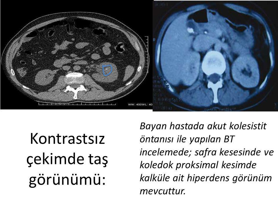 Bayan hastada akut kolesistit öntanısı ile yapılan BT incelemede; safra kesesinde ve koledok proksimal kesimde kalküle ait hiperdens görünüm mevcuttur