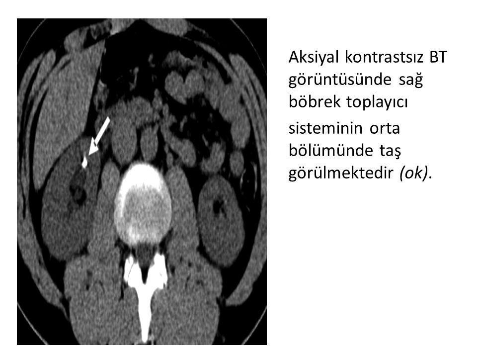 Aksiyal kontrastsız BT görüntüsünde sağ böbrek toplayıcı sisteminin orta bölümünde taş görülmektedir (ok).