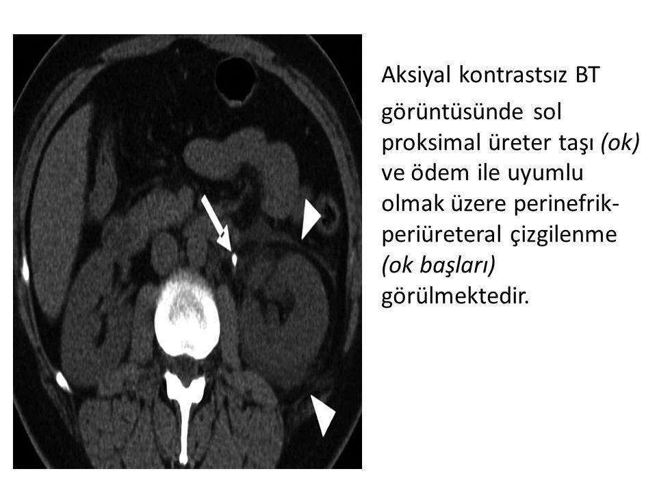 Aksiyal kontrastsız BT görüntüsünde sol proksimal üreter taşı (ok) ve ödem ile uyumlu olmak üzere perinefrik- periüreteral çizgilenme (ok başları) gör