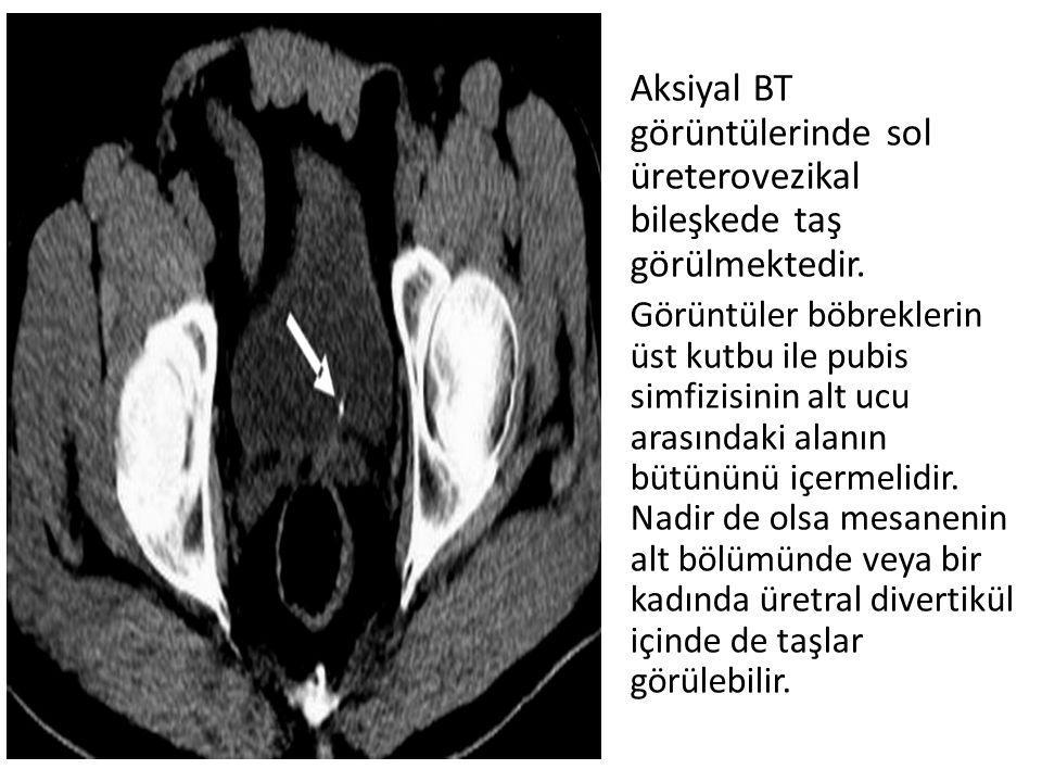 Aksiyal BT görüntülerinde sol üreterovezikal bileşkede taş görülmektedir. Görüntüler böbreklerin üst kutbu ile pubis simfizisinin alt ucu arasındaki a