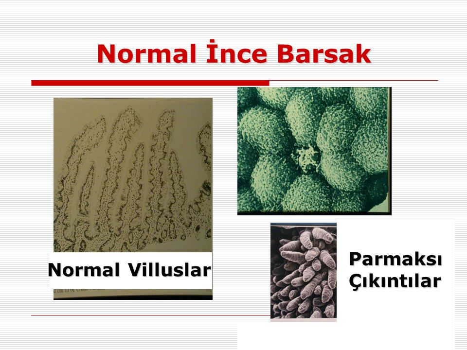 Normal İnce Barsak Parmaksı Çıkıntılar Normal Villuslar