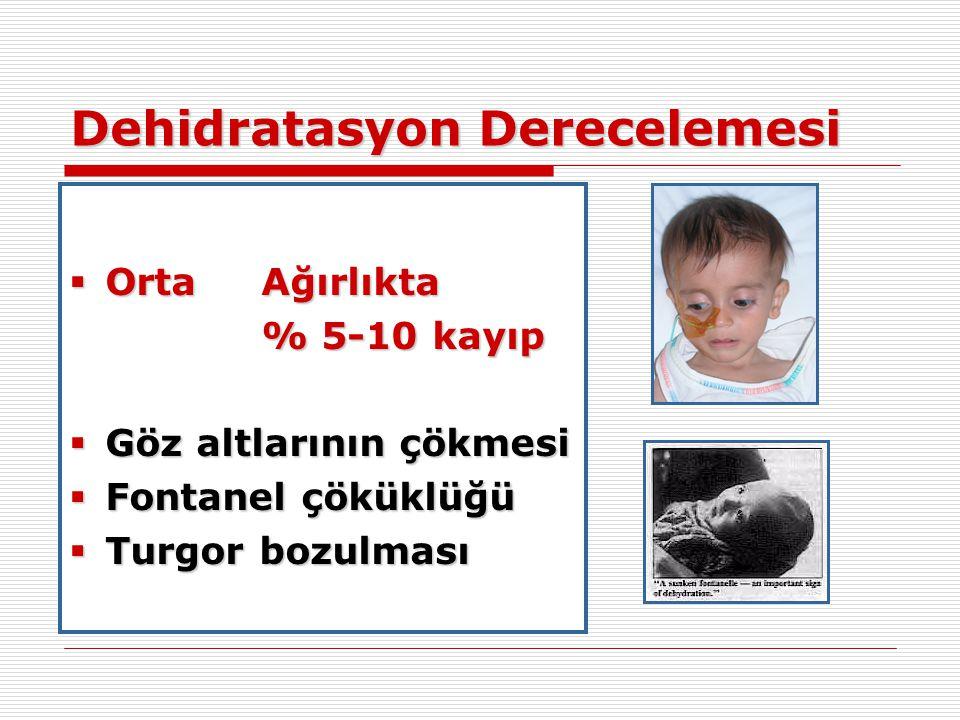 Dehidratasyon Derecelemesi  OrtaAğırlıkta % 5-10 kayıp  Göz altlarının çökmesi  Fontanel çöküklüğü  Turgor bozulması