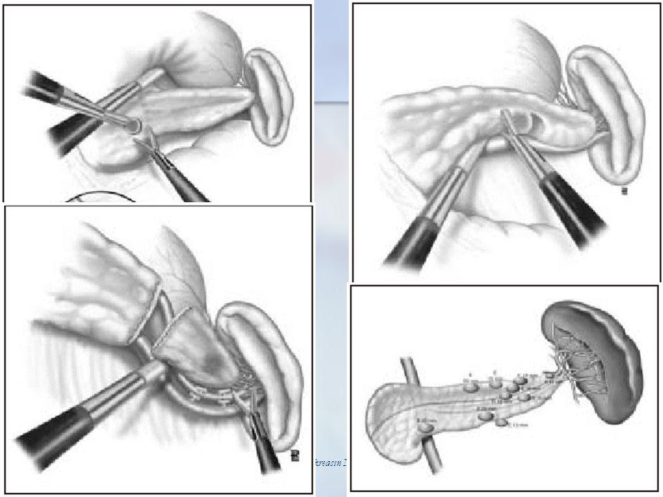 Pankreasın Nöroendokrin Tümörleri 25