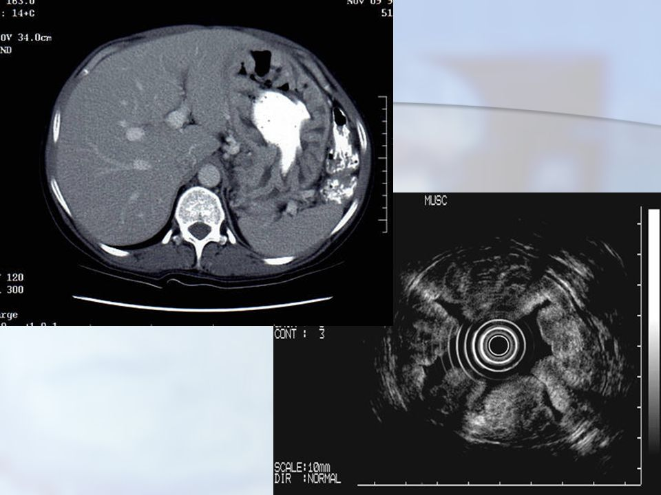 Pankreasın Nöroendokrin Tümörleri 38