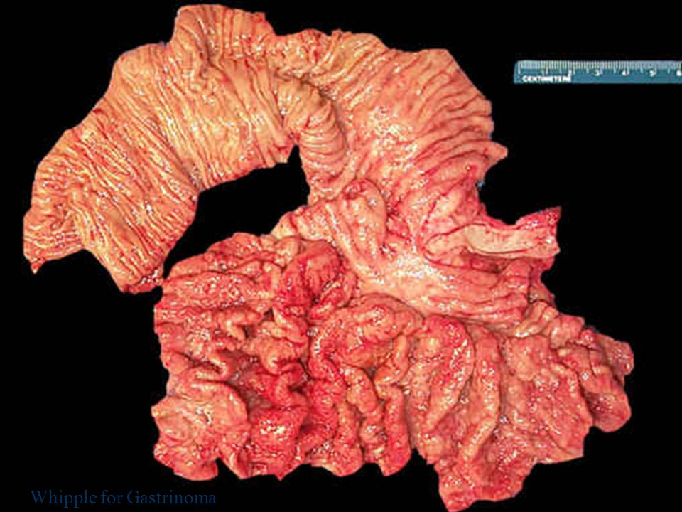 Pankreasın Nöroendokrin Tümörleri 41 Whipple for Gastrinoma