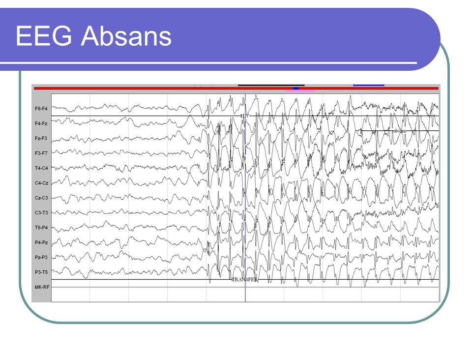 EEG Absans