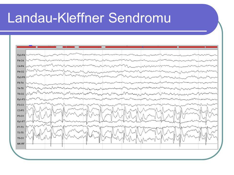 Landau-Kleffner Sendromu