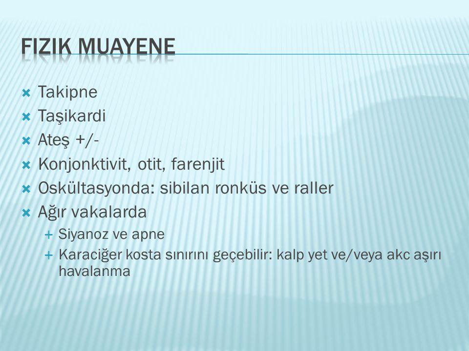  Takipne  Taşikardi  Ateş +/-  Konjonktivit, otit, farenjit  Oskültasyonda: sibilan ronküs ve raller  Ağır vakalarda  Siyanoz ve apne  Karaciğ