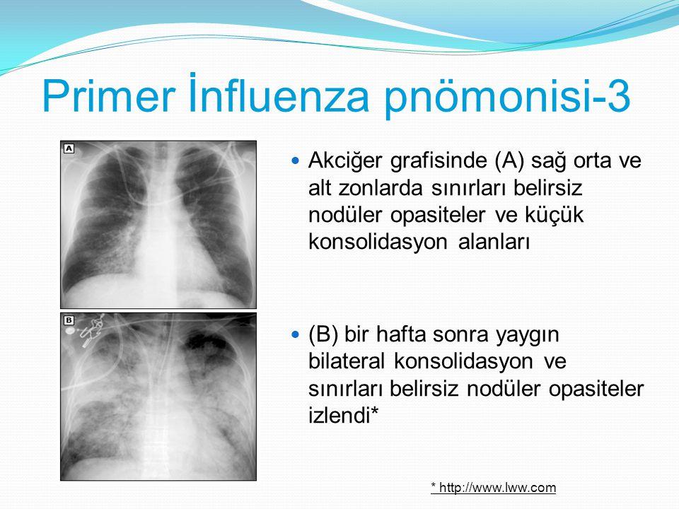 Primer İnfluenza pnömonisi-3 Akciğer grafisinde (A) sağ orta ve alt zonlarda sınırları belirsiz nodüler opasiteler ve küçük konsolidasyon alanları (B)