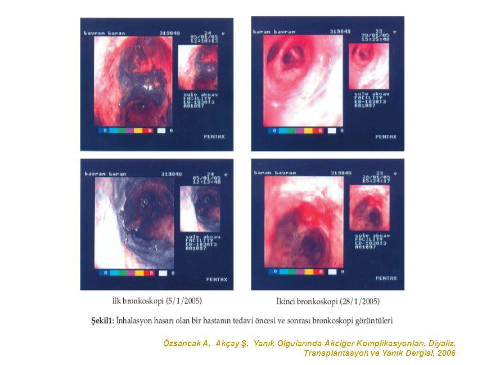 Özsancak A, Akçay Ş, Yanık Olgularında Akciğer Komplikasyonları, Diyaliz, Transplantasyon ve Yanık Dergisi, 2006