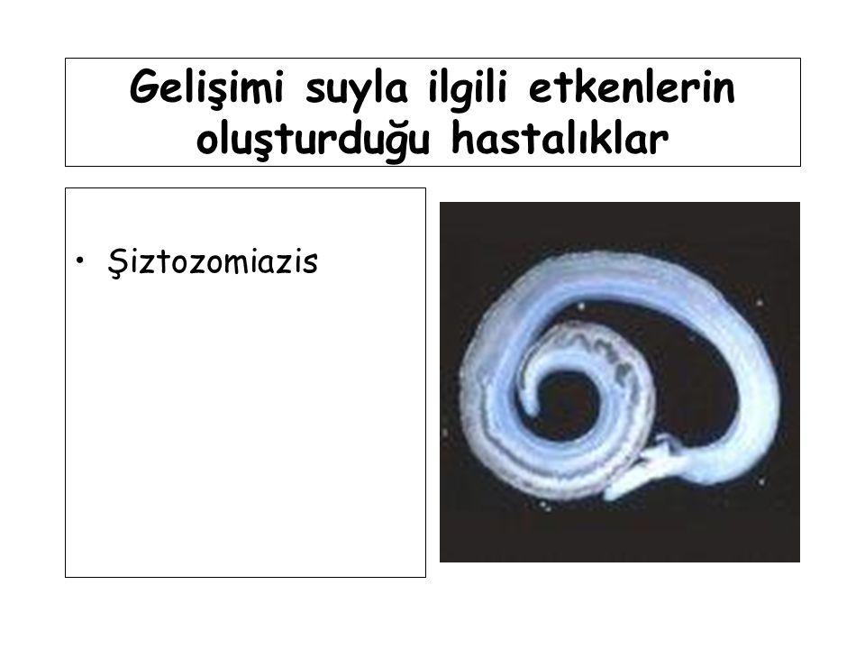Gelişimi suyla ilgili etkenlerin oluşturduğu hastalıklar Şiztozomiazis