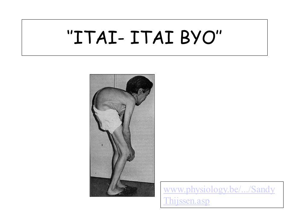 ITAI- ITAI Şiddetli eklem ağrısı, kemiklerde kırık, böbrek yetmezliği 1912 Jintsu nehri 'İtai İtai' 1950'lere kadar bölgesel hastalık ?.