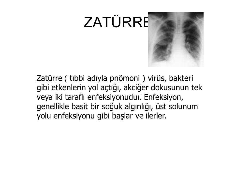 ZATÜRRE Zatürre ( tıbbi adıyla pnömoni ) virüs, bakteri gibi etkenlerin yol açtığı, akciğer dokusunun tek veya iki taraflı enfeksiyonudur.