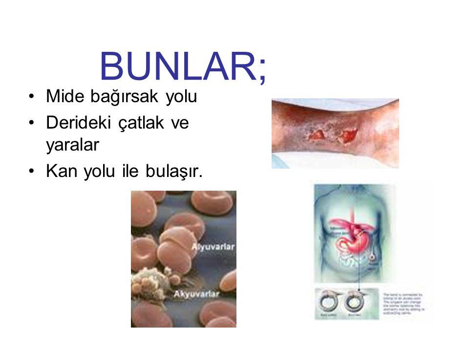 BOĞMACA Boğmaca, her yaşta duyarlı bireyleri etkileyen, hızlı seyirli, bulaşıcı solunum yolları enfeksiyonudur.
