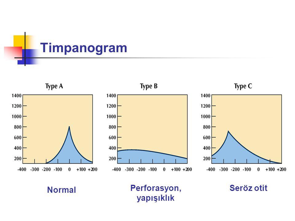Timpanogram Normal Perforasyon, yapışıklık Seröz otit