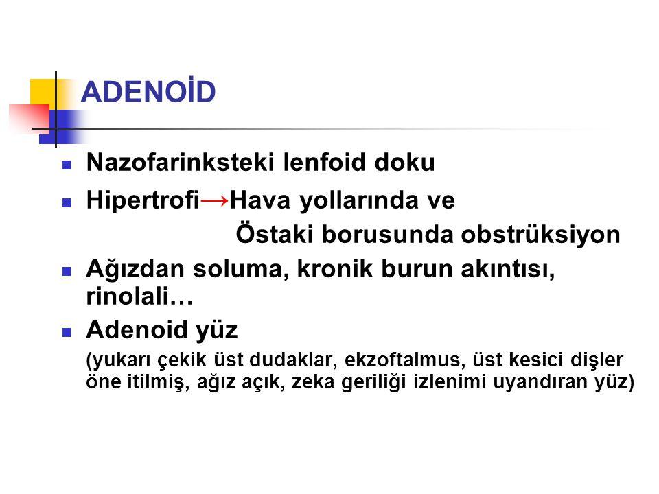 Nazofarinksteki lenfoid doku Hipertrofi → Hava yollarında ve Östaki borusunda obstrüksiyon Ağızdan soluma, kronik burun akıntısı, rinolali… Adenoid yü