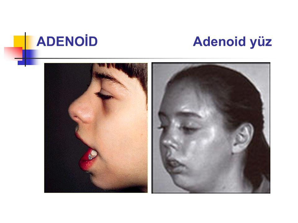 ADENOİD Adenoid yüz