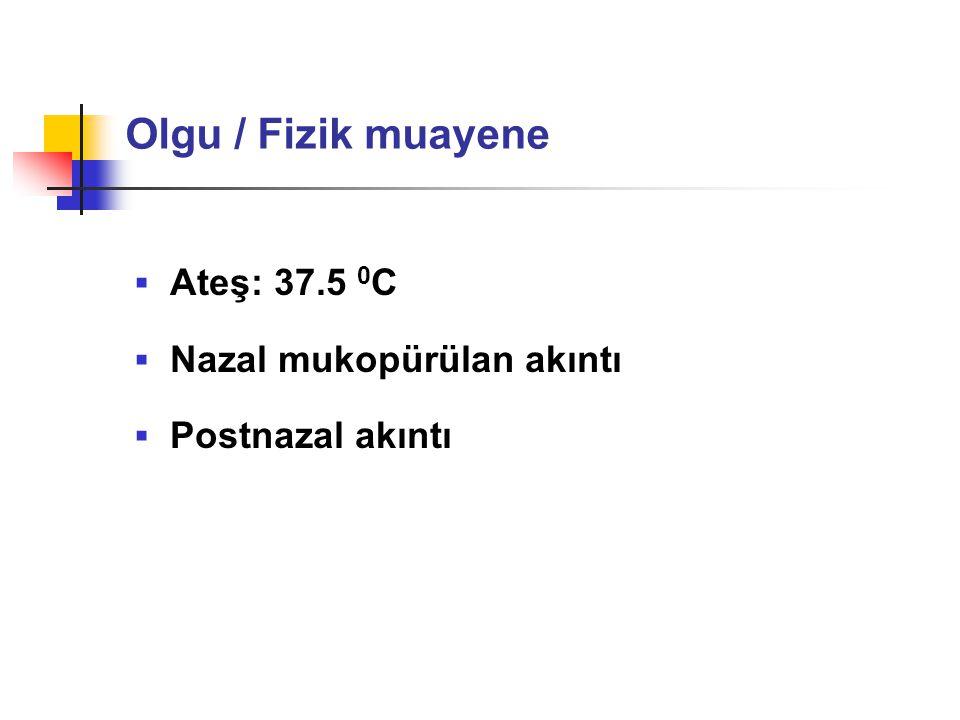  Ateş: 37.5 0 C  Nazal mukopürülan akıntı  Postnazal akıntı Olgu / Fizik muayene