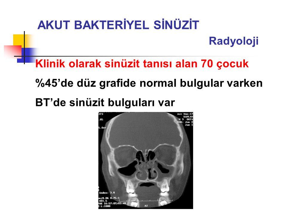 Klinik olarak sinüzit tanısı alan 70 çocuk %45'de düz grafide normal bulgular varken BT'de sinüzit bulguları var AKUT BAKTERİYEL SİNÜZİT Radyoloji