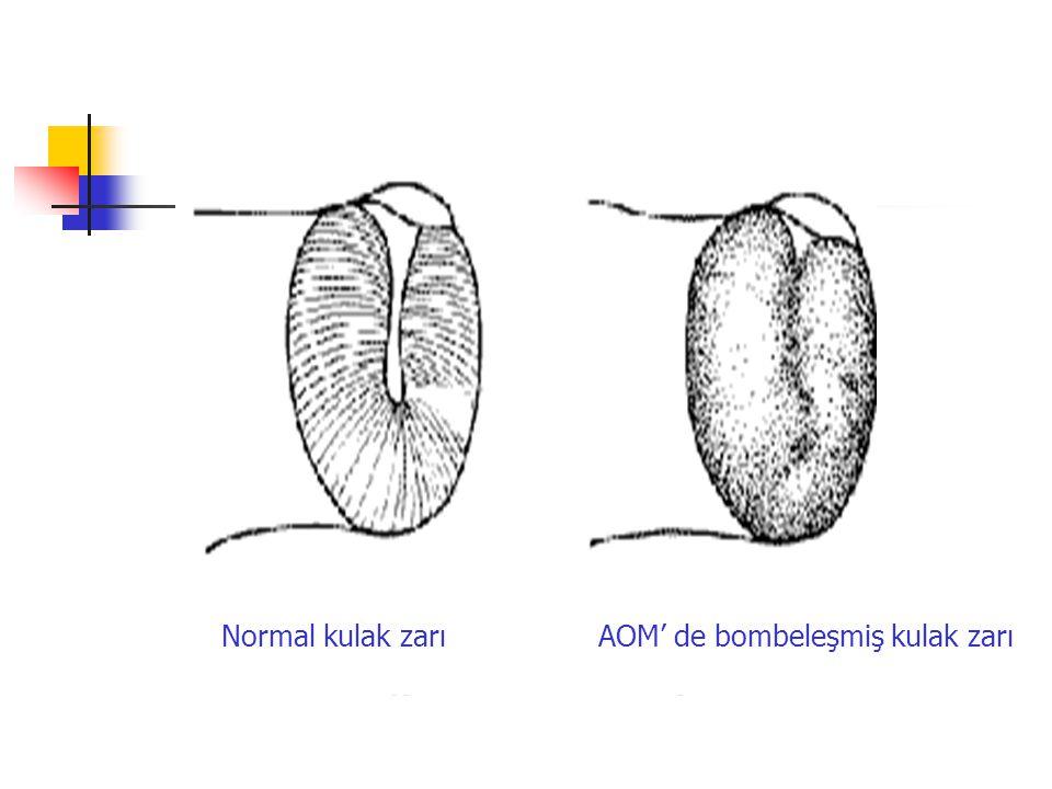 Normal kulak zarıAOM' de bombeleşmiş kulak zarı