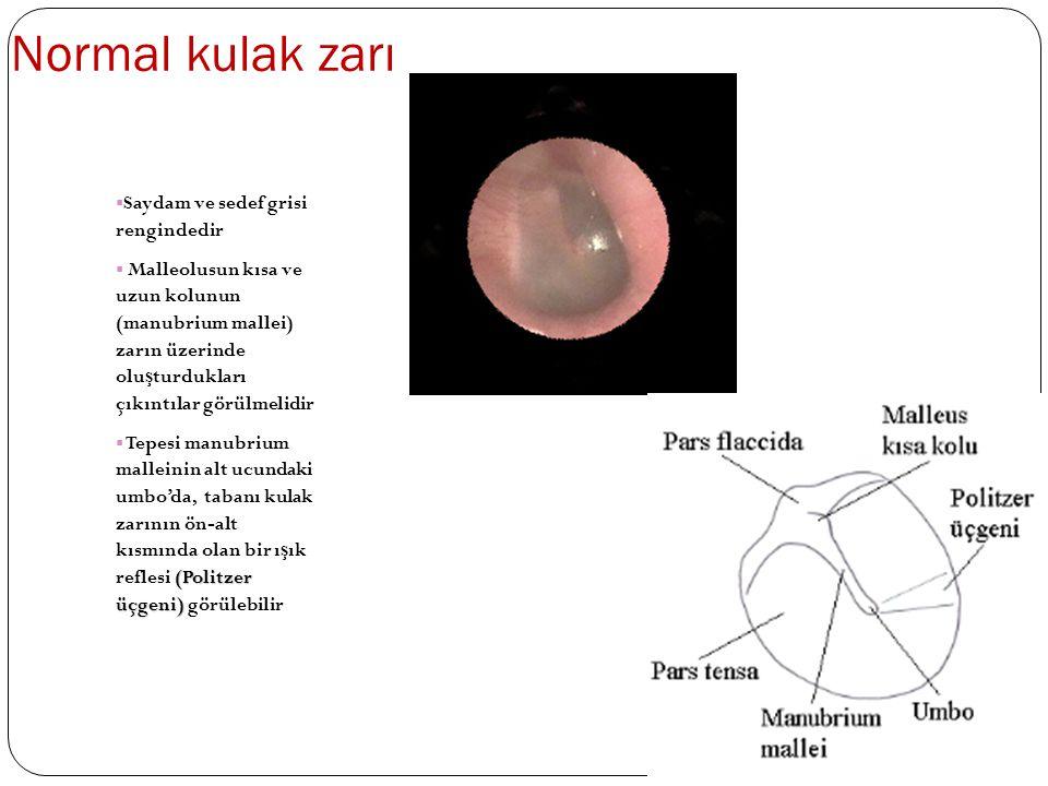 Normal kulak zarı  Saydam ve sedef grisi rengindedir  Malleolusun kısa ve uzun kolunun (manubrium mallei) zarın üzerinde olu ş turdukları çıkıntılar görülmelidir (Politzer üçgeni)  Tepesi manubrium malleinin alt ucundaki umbo'da, tabanı kulak zarının ön-alt kısmında olan bir ı ş ık reflesi (Politzer üçgeni) görülebilir