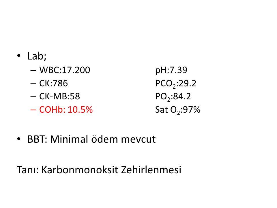 Lab; – WBC:17.200pH:7.39 – CK:786PCO 2 :29.2 – CK-MB:58PO 2 :84.2 – COHb: 10.5%Sat O 2 :97% BBT: Minimal ödem mevcut Tanı: Karbonmonoksit Zehirlenmesi