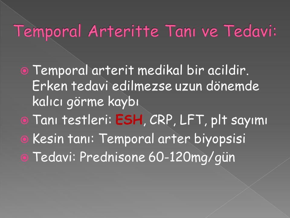  Temporal arterit medikal bir acildir. Erken tedavi edilmezse uzun dönemde kalıcı görme kaybı  Tanı testleri: ESH, CRP, LFT, plt sayımı  Kesin tanı