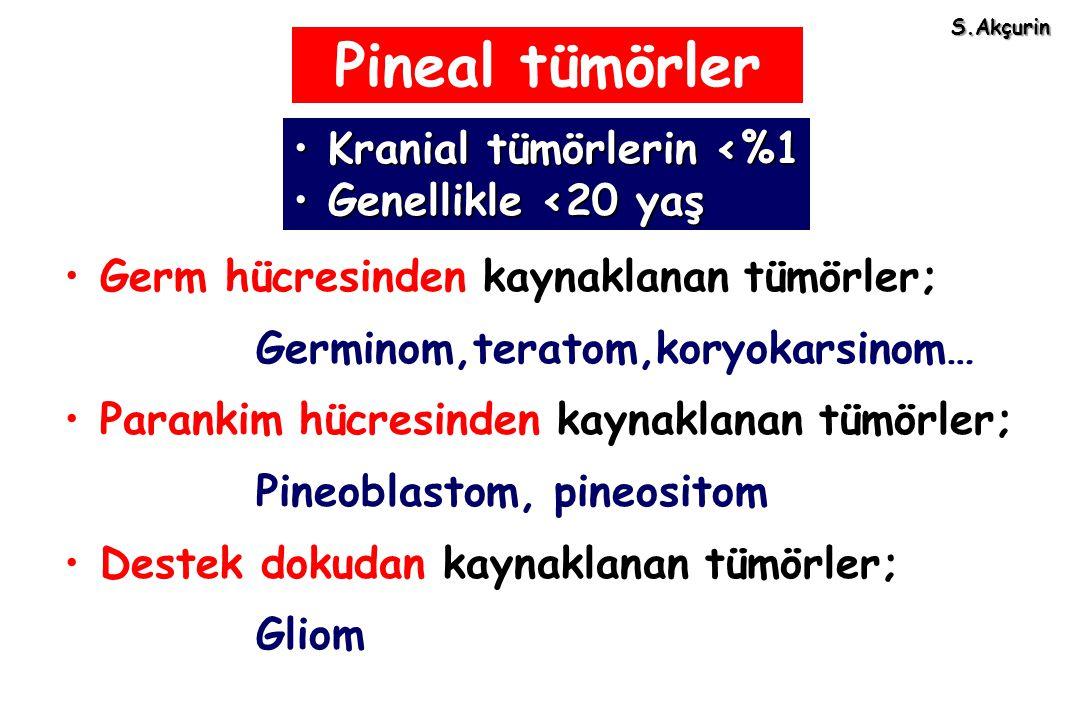 Pineal tümörler Germ hücresinden kaynaklanan tümörler; Germinom,teratom,koryokarsinom… Parankim hücresinden kaynaklanan tümörler; Pineoblastom, pineos