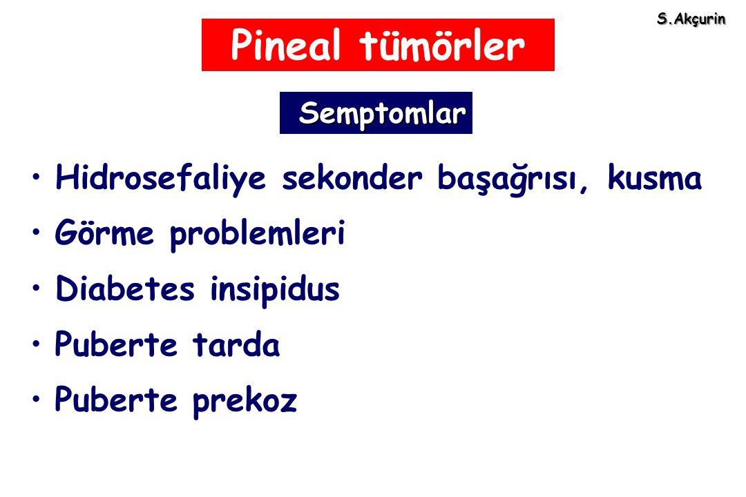 Pineal tümörler Hidrosefaliye sekonder başağrısı, kusma Görme problemleri Diabetes insipidus Puberte tarda Puberte prekoz Semptomlar Semptomlar S.Akçu