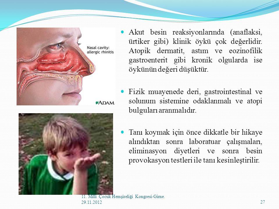 Akut besin reaksiyonlarında (anaflaksi, ürtiker gibi) klinik öykü çok değerlidir. Atopik dermatit, astım ve eozinofilik gastroenterit gibi kronik olgu