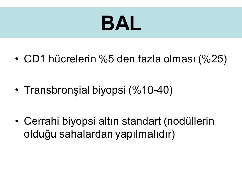 BAL CD1 hücrelerin %5 den fazla olması (%25) Transbronşial biyopsi (%10-40) Cerrahi biyopsi altın standart (nodüllerin olduğu sahalardan yapılmalıdır)