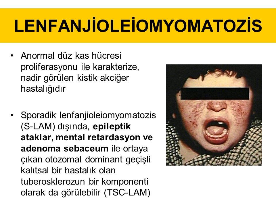 LENFANJİOLEİOMYOMATOZİS Anormal düz kas hücresi proliferasyonu ile karakterize, nadir görülen kistik akciğer hastalığıdır Sporadik lenfanjioleiomyomatozis (S-LAM) dışında, epileptik ataklar, mental retardasyon ve adenoma sebaceum ile ortaya çıkan otozomal dominant geçişli kalıtsal bir hastalık olan tuberosklerozun bir komponenti olarak da görülebilir (TSC-LAM)