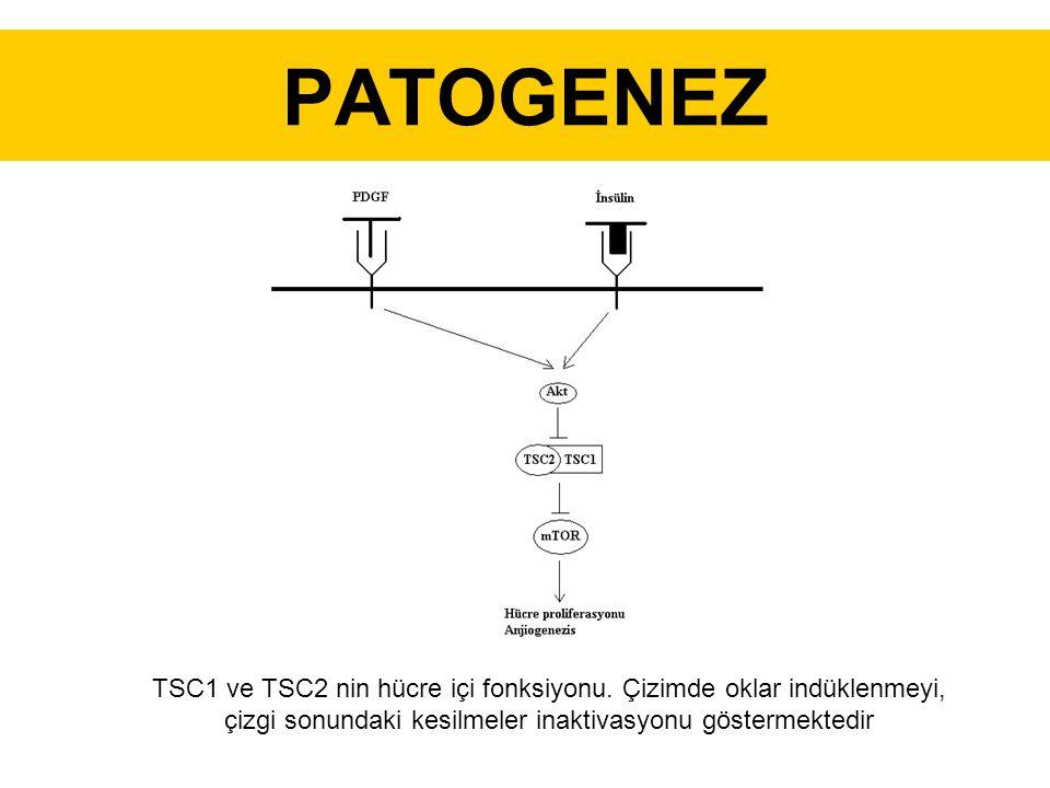 PATOGENEZ TSC1 ve TSC2 nin hücre içi fonksiyonu.