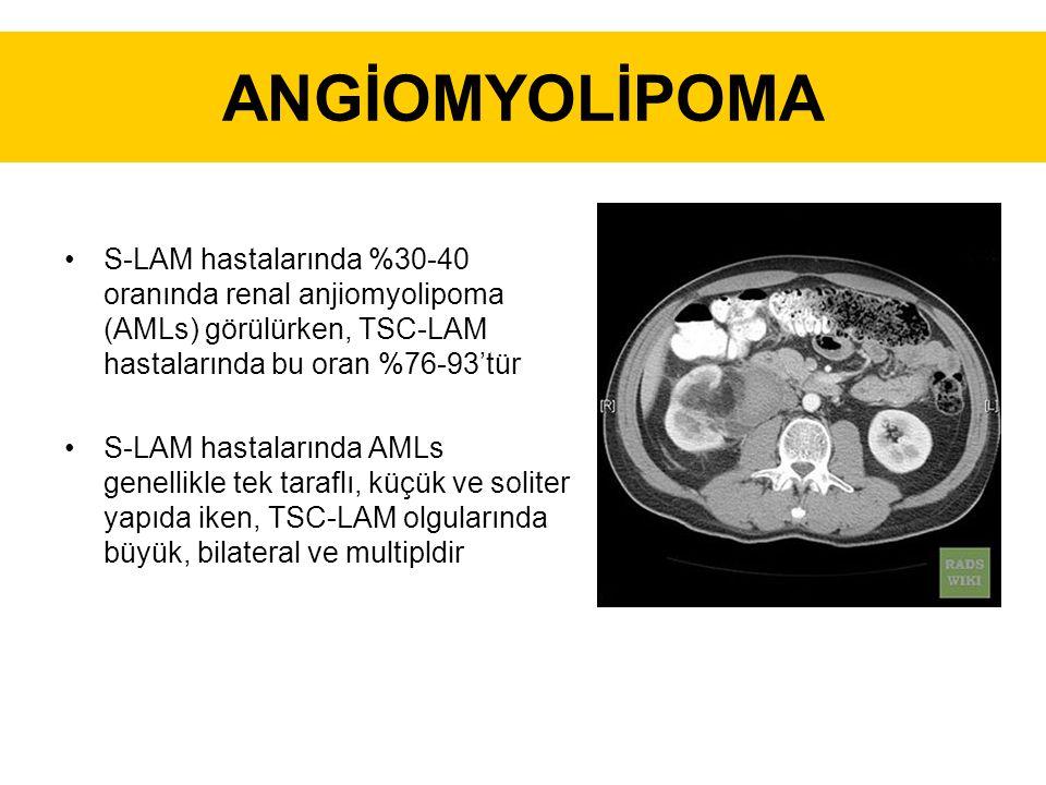 ANGİOMYOLİPOMA S-LAM hastalarında %30-40 oranında renal anjiomyolipoma (AMLs) görülürken, TSC-LAM hastalarında bu oran %76-93'tür S-LAM hastalarında AMLs genellikle tek taraflı, küçük ve soliter yapıda iken, TSC-LAM olgularında büyük, bilateral ve multipldir