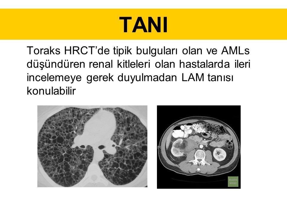 TANI Toraks HRCT'de tipik bulguları olan ve AMLs düşündüren renal kitleleri olan hastalarda ileri incelemeye gerek duyulmadan LAM tanısı konulabilir