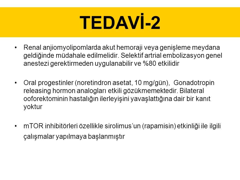 TEDAVİ-2 Renal anjiomyolipomlarda akut hemoraji veya genişleme meydana geldiğinde müdahale edilmelidir.