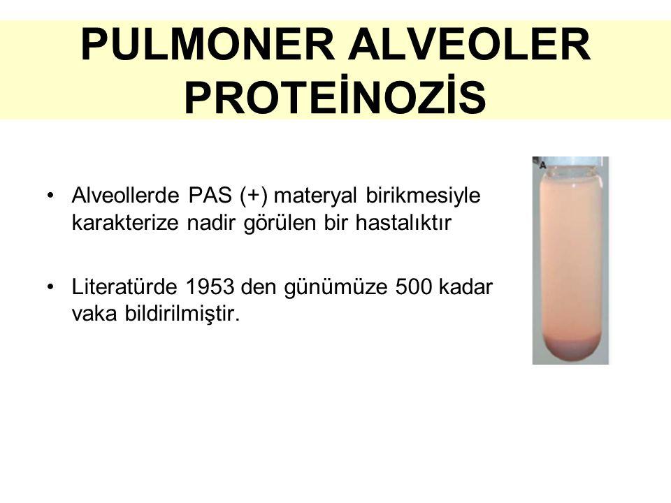 PULMONER ALVEOLER PROTEİNOZİS Alveollerde PAS (+) materyal birikmesiyle karakterize nadir görülen bir hastalıktır Literatürde 1953 den günümüze 500 kadar vaka bildirilmiştir.