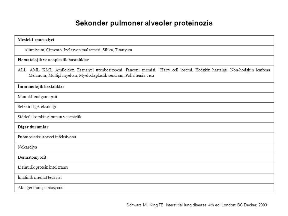 Mesleki maruziyet Alümiyum, Çimento, İzolasyon malzemesi, Silika, Titanyum Hematolojik ve neoplastik hastalıklar ALL, AML, KML, Amiloidoz, Esansiyel trombositopeni, Fanconi anemisi, Hairy cell lösemi, Hodgkin hastalığı, Non-hodgkin lenfoma, Melanom, Multipl myelom, Myelodisplastik sendrom, Polisitemia vera İmmunolojik hastalıklar Monoklonal gamapati Selektif IgA eksikliği Şiddetli kombine immun yetersizlik Diğer durumlar Pnömosistis jiroveci infeksiyonu Nokardiya Dermatomyozit Lizinürik protein intoleransı İmatinib mesilat tedavisi Akciğer transplantasyonu Sekonder pulmoner alveoler proteinozis Schwarz MI, King TE.