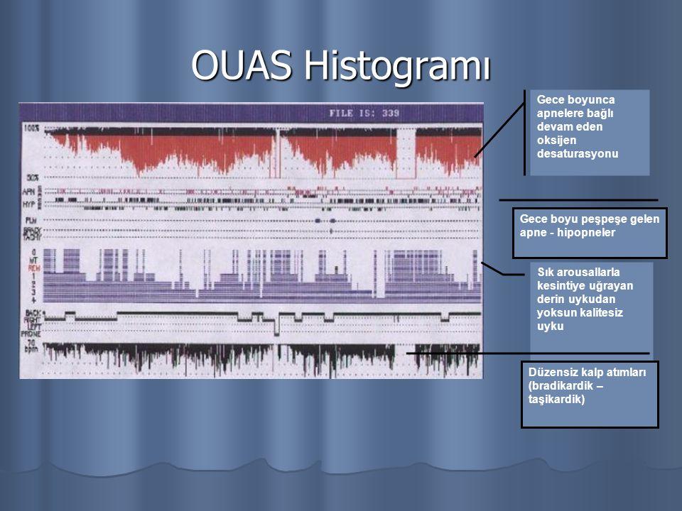 OUAS Histogramı Gece boyunca apnelere bağlı devam eden oksijen desaturasyonu Sık arousallarla kesintiye uğrayan derin uykudan yoksun kalitesiz uyku Ge
