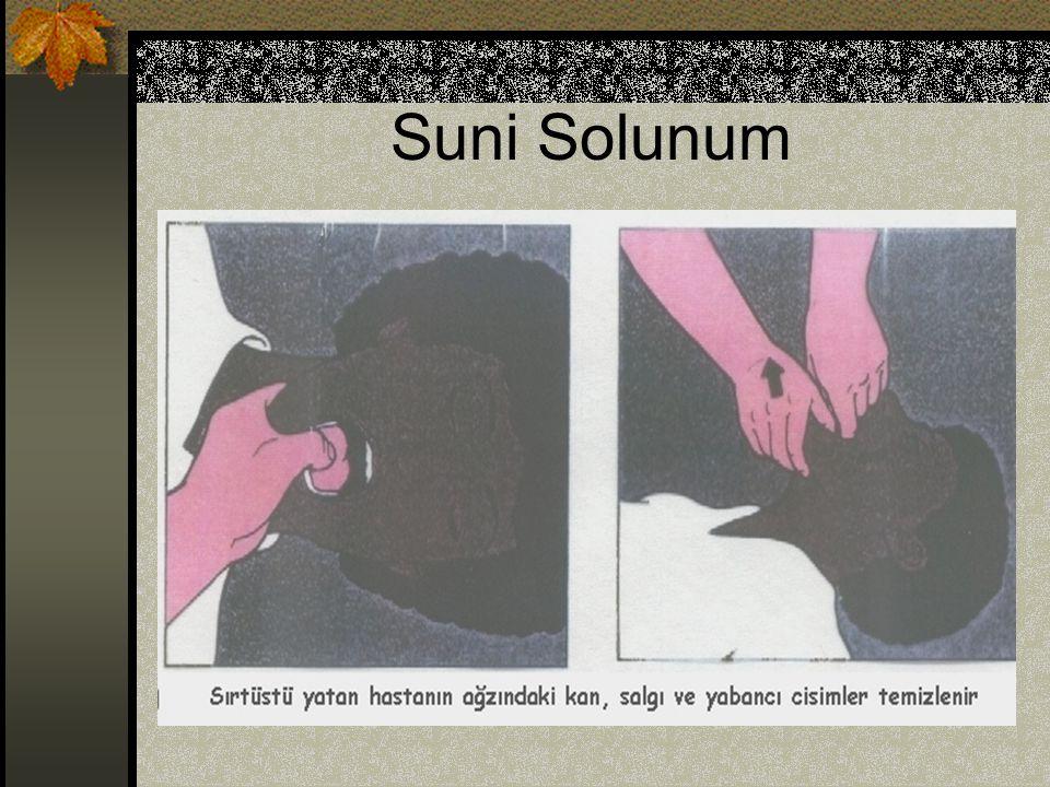 Suni Solunum