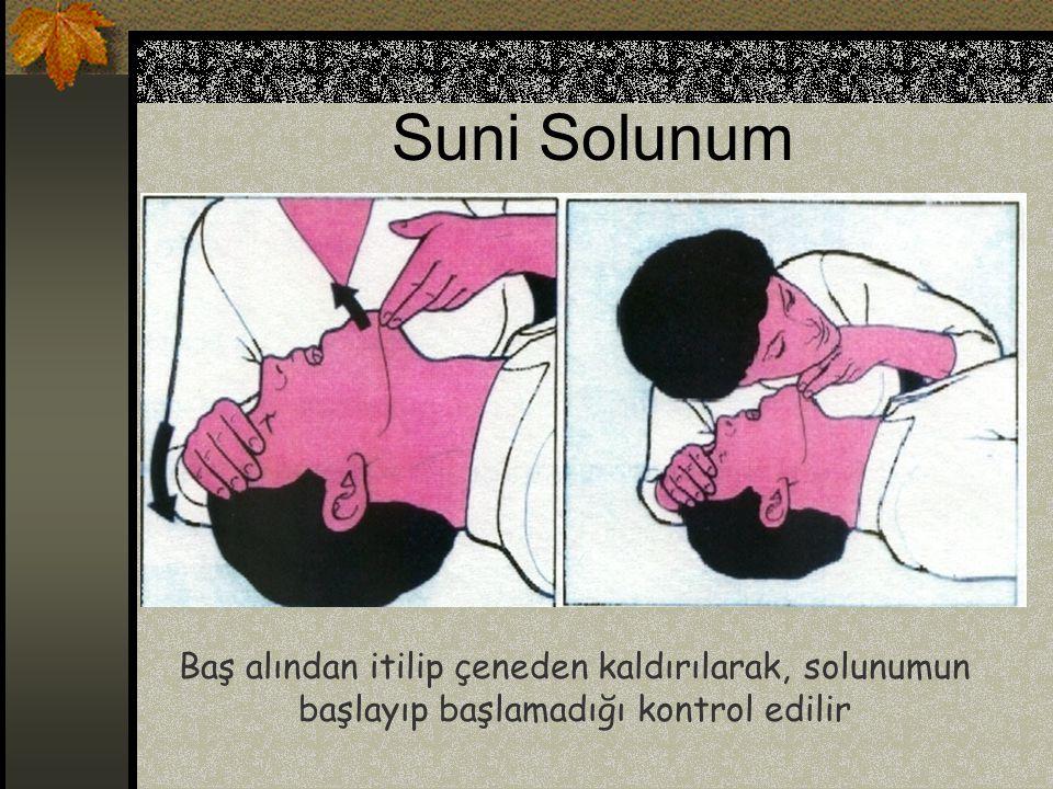 Baş alından itilip çeneden kaldırılarak, solunumun başlayıp başlamadığı kontrol edilir