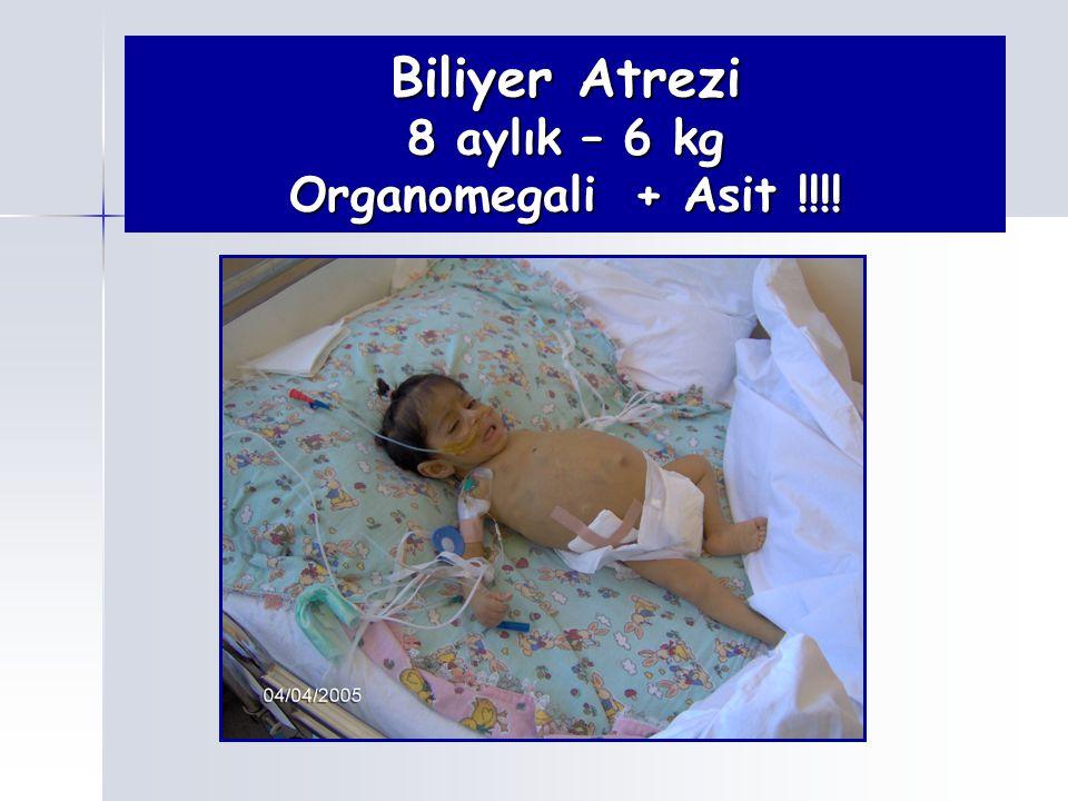 Biliyer Atrezi 8 aylık – 6 kg Organomegali + Asit !!!!