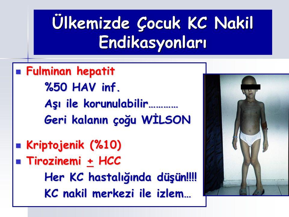 Ülkemizde Çocuk KC Nakil Endikasyonları Fulminan hepatit Fulminan hepatit %50 HAV inf. Aşı ile korunulabilir………… Geri kalanın çoğu WİLSON Kriptojenik