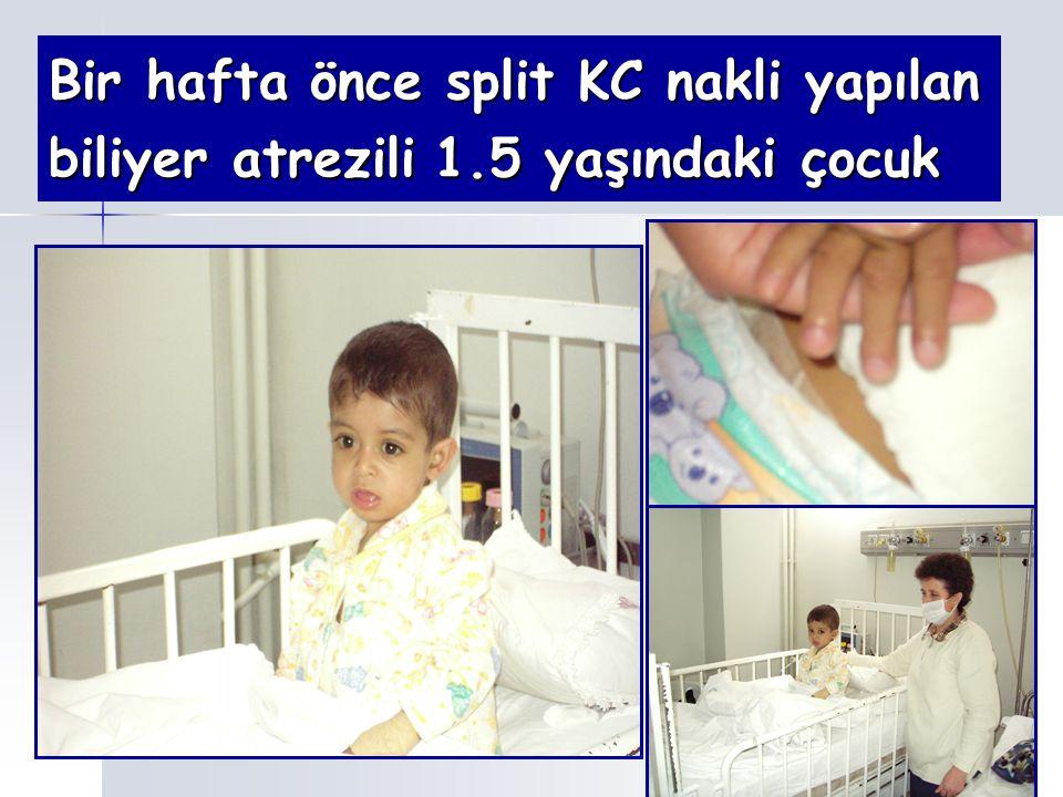 Bir hafta önce split KC nakli yapılan biliyer atrezili 1.5 yaşındaki çocuk
