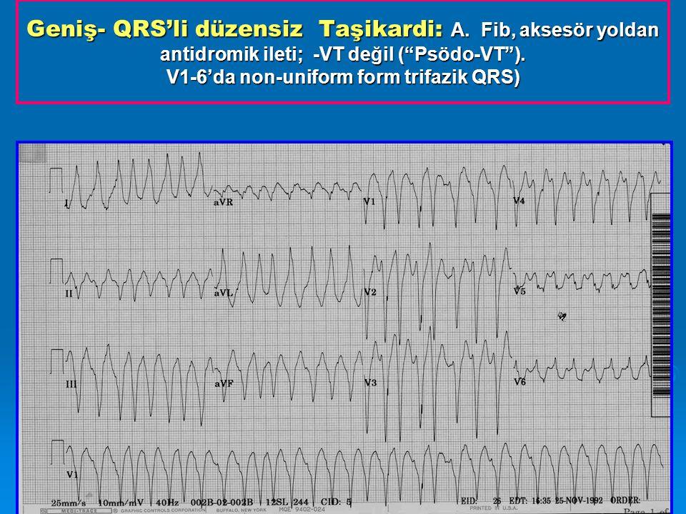 Geniş- QRS'li düzensiz Taşikardi: A.Fib, aksesör yoldan antidromik ileti; -VT değil ( Psödo-VT ).