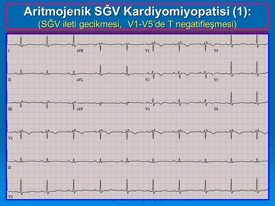 Aritmojenik SĞV Kardiyomiyopatisi (1): (SĞV ileti gecikmesi, V1-V5'de T negatifleşmesi)