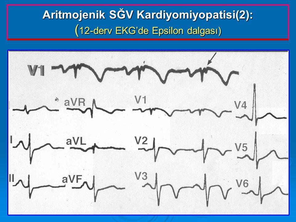Aritmojenik SĞV Kardiyomiyopatisi(2): ( 12-derv EKG'de Epsilon dalgası)