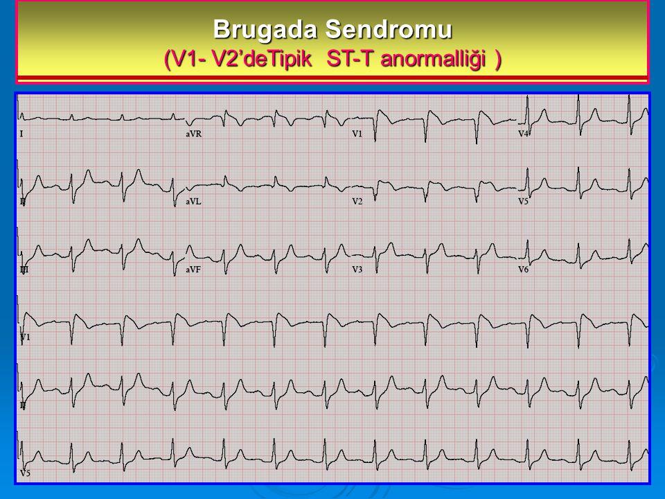 Brugada Sendromu (V1- V2'deTipik ST-T anormalliği )